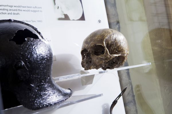 Sir John Fenwick's Skull